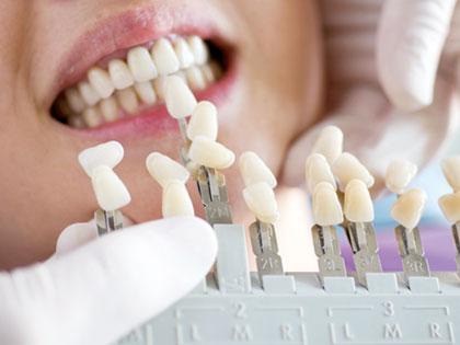 人工歯を並べる